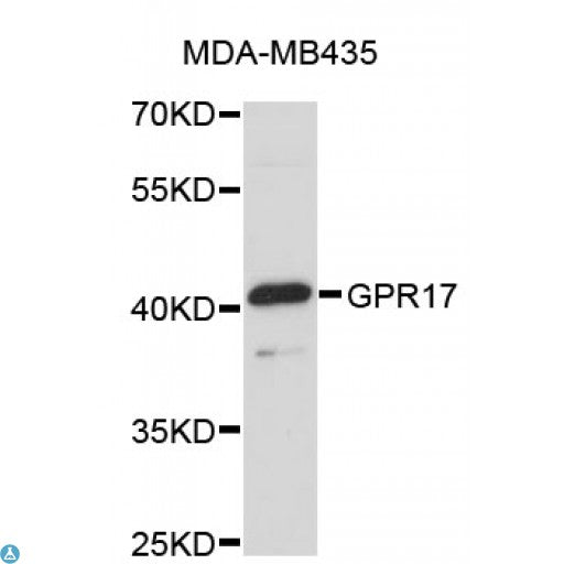 Buy Anti-GPR17 Antibody Online from St John Labs