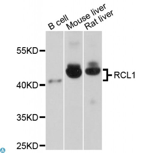 Buy Anti-RCL1 Antibody Online from St John Labs