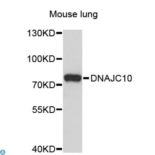 Buy Anti-DNAJC10 Antibody Online from St John Labs