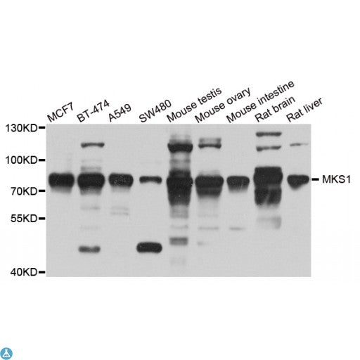 Buy Anti-MKS1 Antibody Online from St John Labs