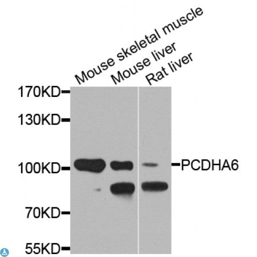 Buy Anti-PCDHA6 Antibody Online from St John Labs