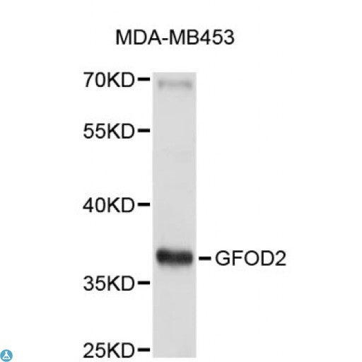 Buy Anti-GFOD2 Antibody Online from St John Labs