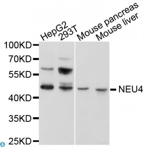 Buy Anti-NEU4 Antibody Online from St John Labs