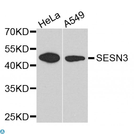 Buy Anti-SESN3 Antibody Online from St John Labs