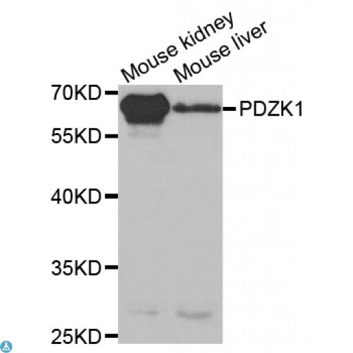 Buy Anti-PDZK1 Antibody Online from St John Labs