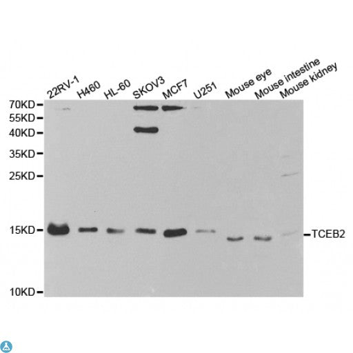 Buy Anti-TCEB2 Antibody Online from St John Labs