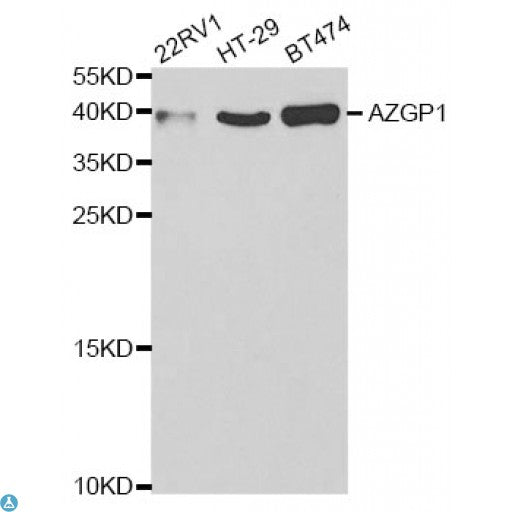 Buy Anti-AZGP1 Antibody Online from St John Labs
