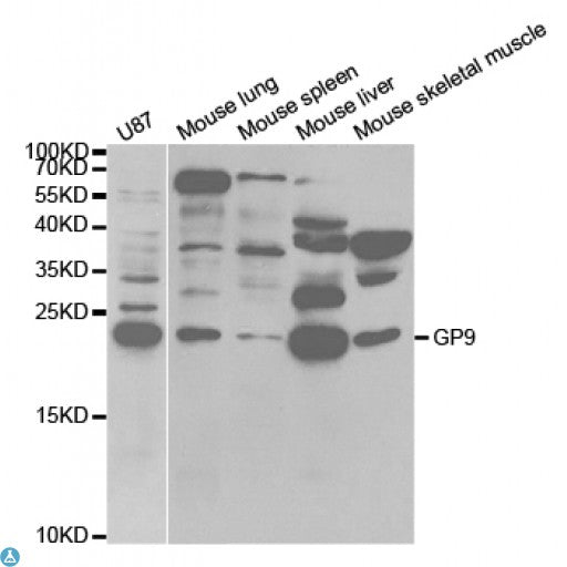 Buy Anti-GP9 Antibody Online from St John Labs
