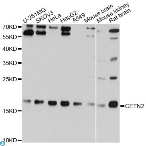 Buy Anti-CETN2 Antibody Online from St John Labs