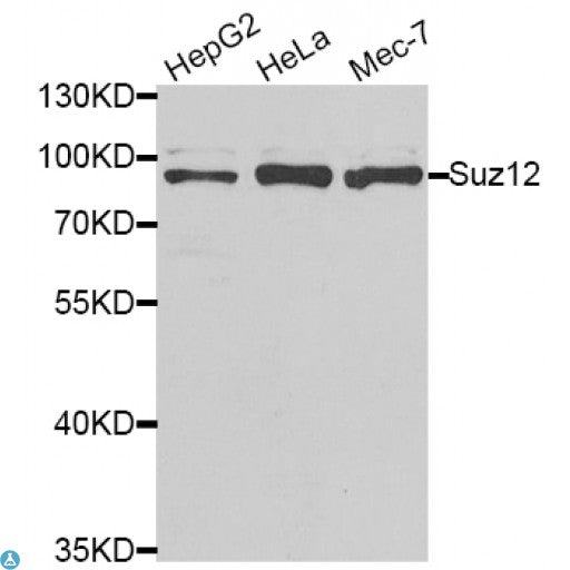 Buy Anti-SUZ12 Antibody Online from St John Labs