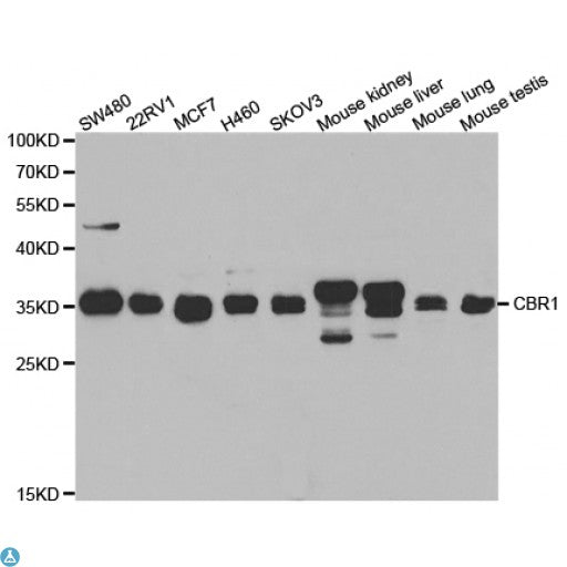 Buy Anti-CBR1 Antibody Online from St John Labs