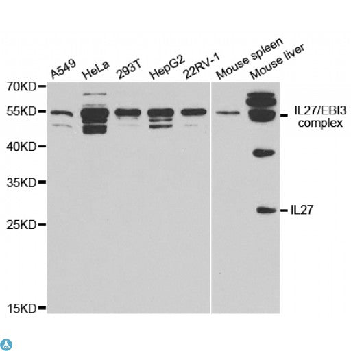 Buy Anti-IL27 Antibody Online from St John Labs