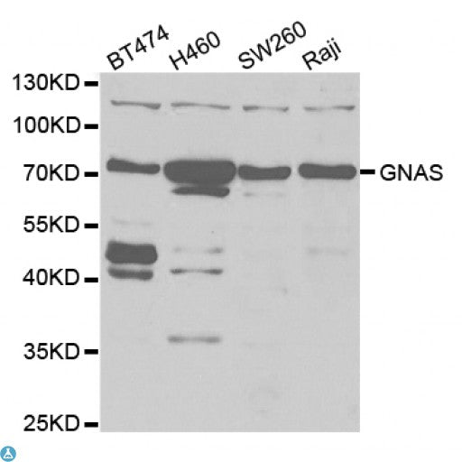 Buy Anti-GNAS Antibody Online from St John Labs