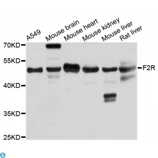 Buy Anti-F2R Antibody Online from St John Labs