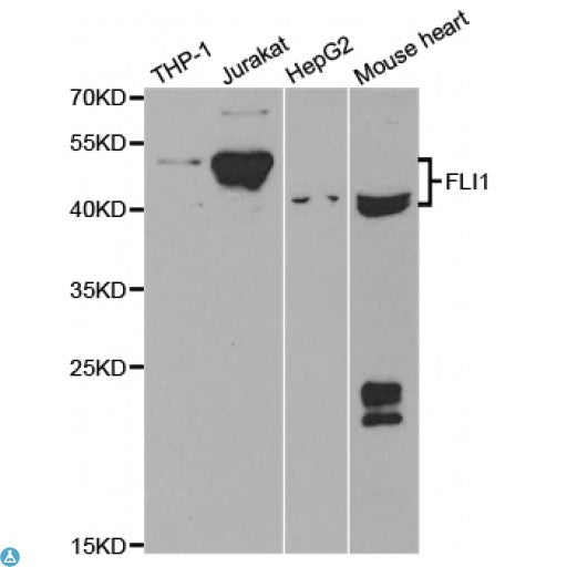 Buy Anti-FLI1 Antibody Online from St John Labs