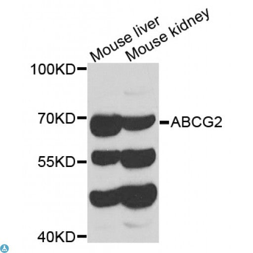 Buy Anti-ABCG2 Antibody Online from St John Labs