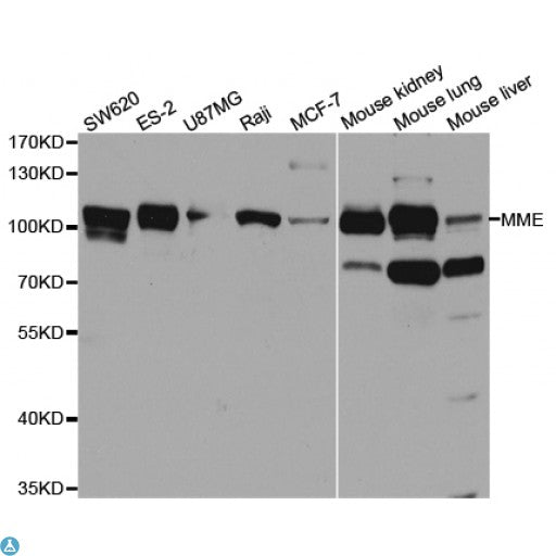 Buy Anti-MME Antibody Online from St John Labs