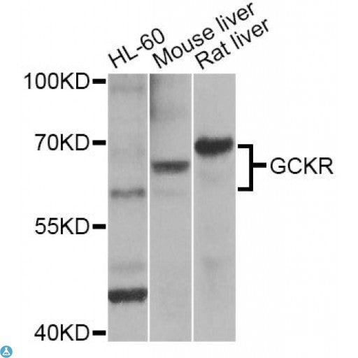 Buy Anti-GCKR Antibody Online from St John Labs