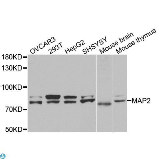 Buy Anti-Map2 Antibody Online from St John Labs