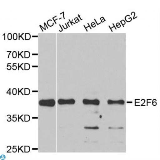Buy Anti-E2F6 Antibody Online from St John Labs