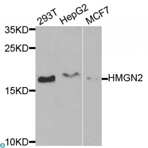 Buy Anti-HMGN2 Antibody Online from St John Labs