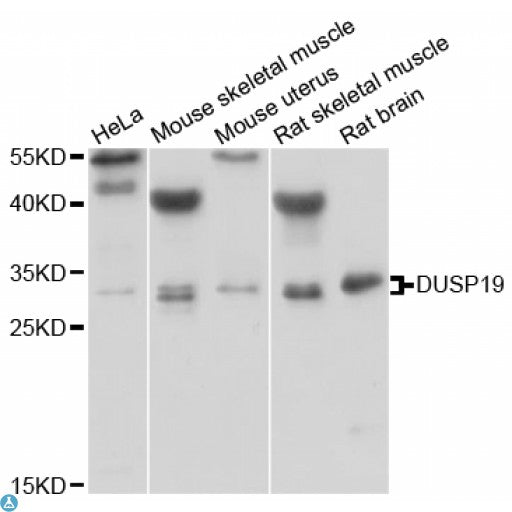 Buy Anti-DUSP19 Antibody Online from St John Labs