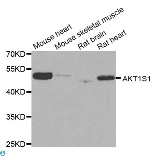 Buy Anti-AKT1S1 Antibody Online from St John Labs