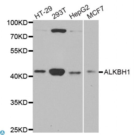 Buy Anti-ALKBH1 Antibody Online from St John Labs