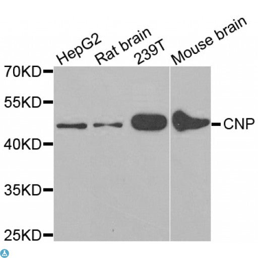 Buy Anti-CNP Antibody Online from St John Labs