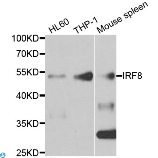 Buy Anti-IRF8 Antibody Online from St John Labs