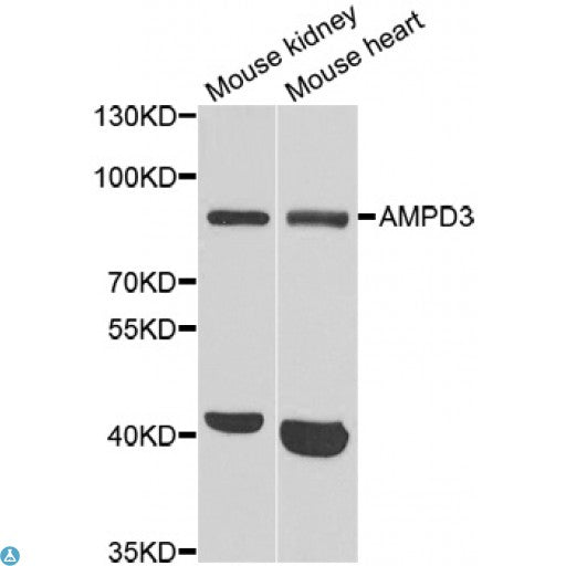 Buy Anti-AMPD3 Antibody Online from St John Labs