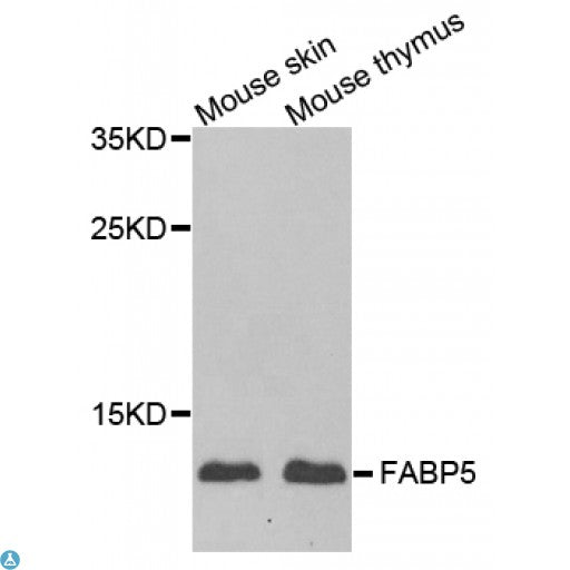 Buy Anti-FABP5 Antibody Online from St John Labs