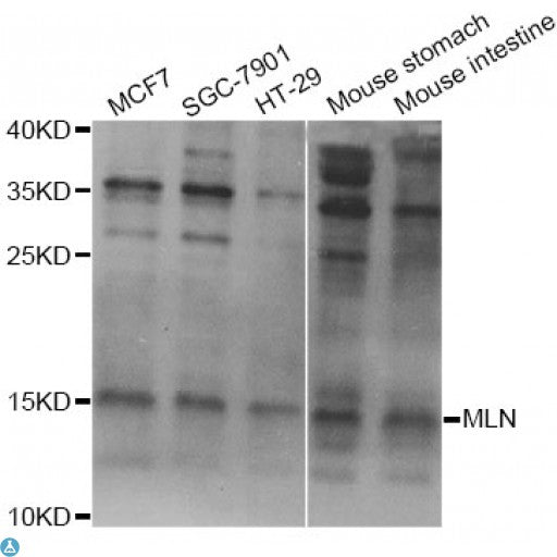 Buy Anti-MLN Antibody Online from St John Labs