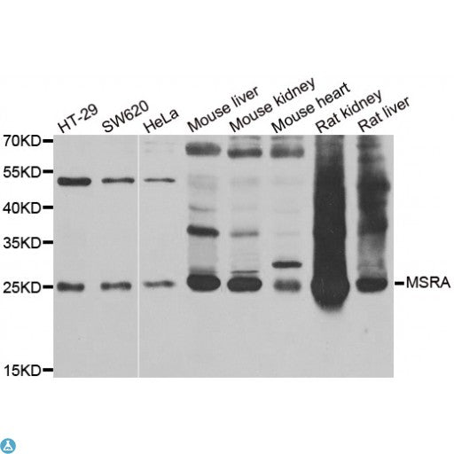 Buy Anti-MSRA Antibody Online from St John Labs