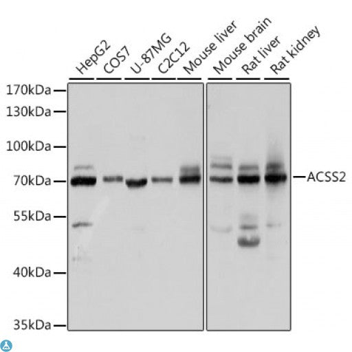 Buy Anti-ACSS2 Antibody Online from St John Labs