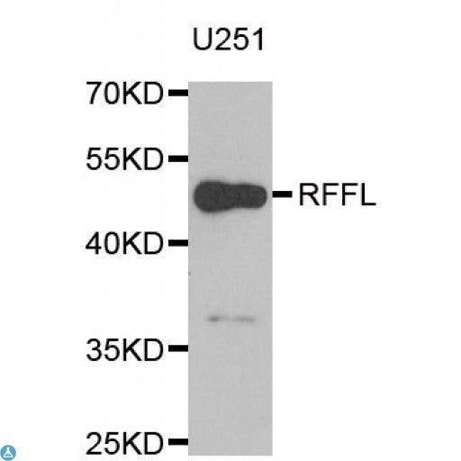 Buy Anti-RFFL Antibody Online from St John Labs