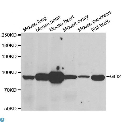 Buy Anti-GLI2 Antibody Online from St John Labs