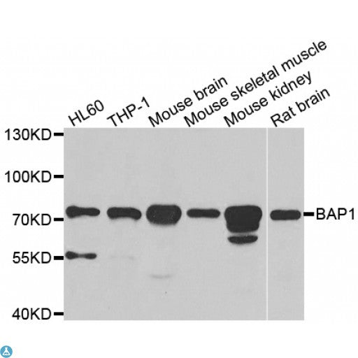Buy Anti-BAP1 Antibody Online from St John Labs