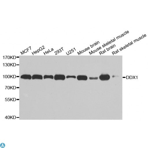 Buy Anti-DDX1 Antibody Online from St John Labs