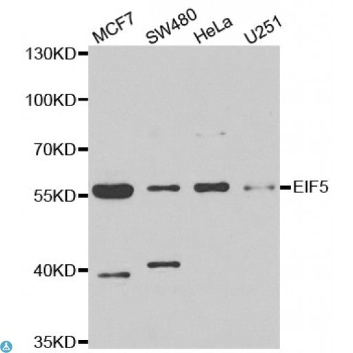 Buy Anti-EIF5 Antibody Online from St John Labs