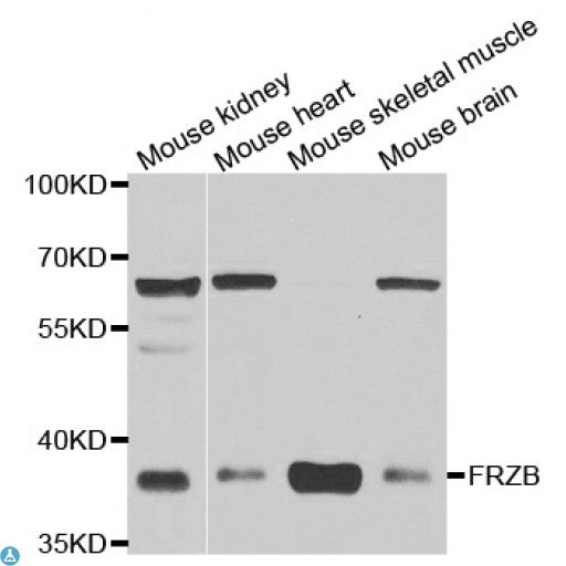 Buy Anti-FRZB Antibody Online from St John Labs