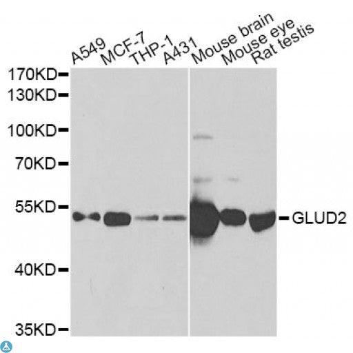 Buy Anti-GLUD2 Antibody Online from St John Labs