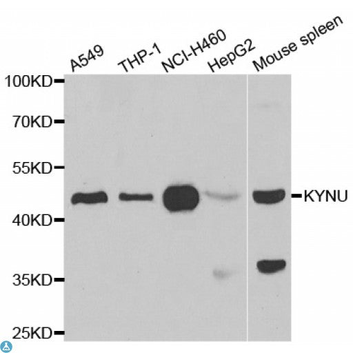 Buy Anti-KYNU Antibody Online from St John Labs