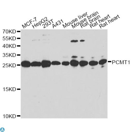 Buy Anti-PCMT1 Antibody Online from St John Labs