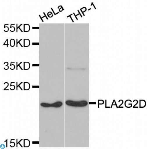 Buy Anti-PLA2G2D Antibody Online from St John Labs