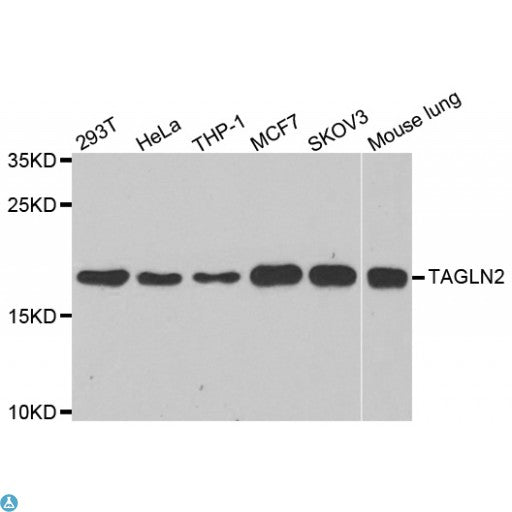 Buy Anti-TAGLN2 Antibody Online from St John Labs
