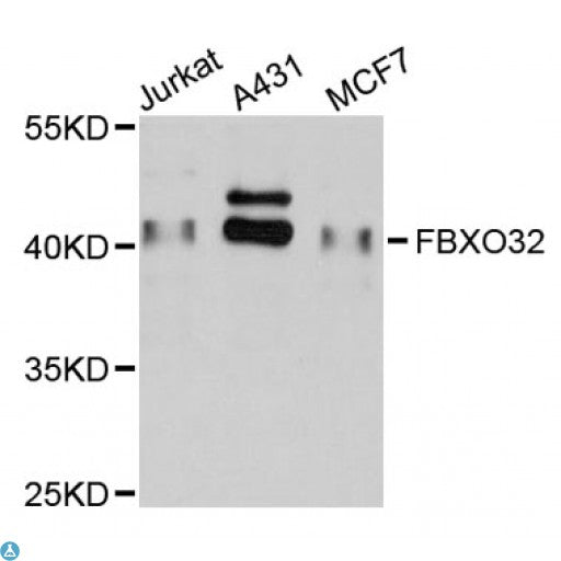 Buy Anti-FBXO32 Antibody Online from St John Labs