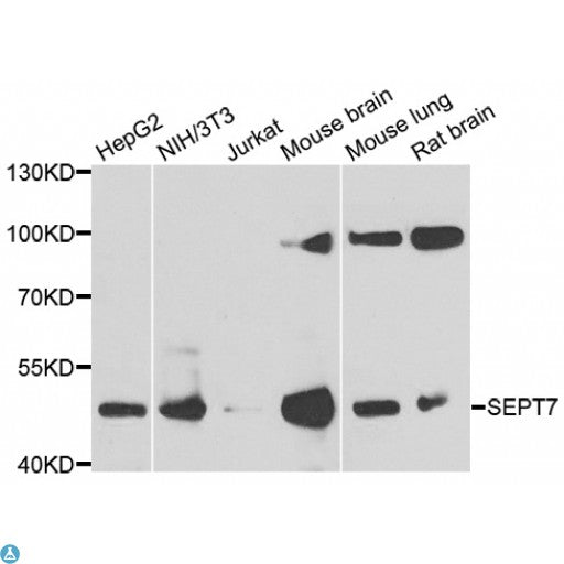 Buy Anti-SEPT7 Antibody Online from St John Labs