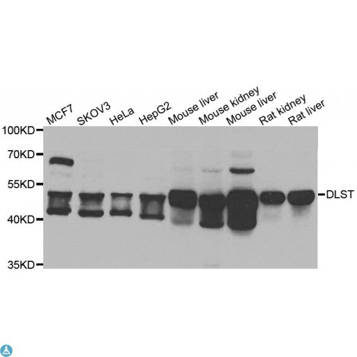 Buy Anti-DLST Antibody Online from St John Labs