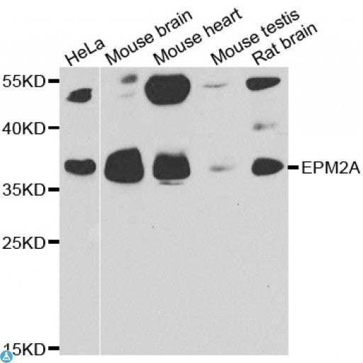 Buy Anti-EPM2A Antibody Online from St John Labs